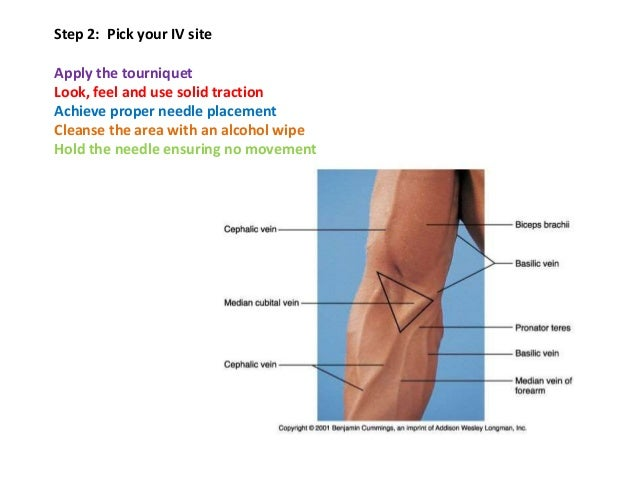 how to document iv insertion